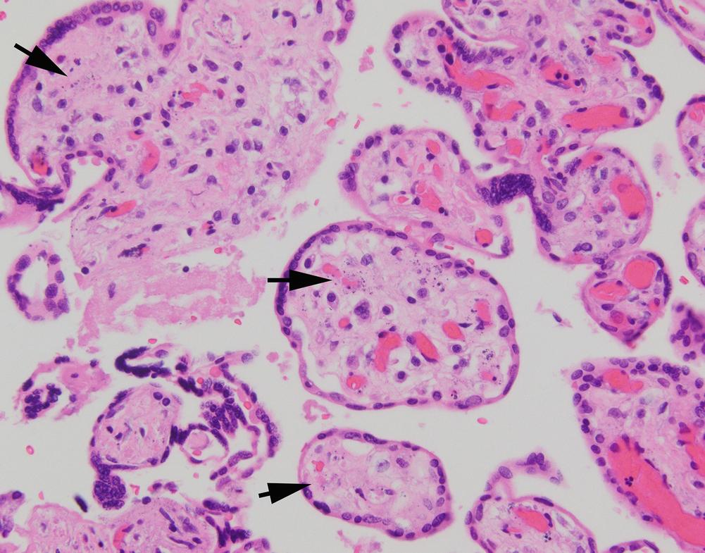 Color Atlas of Fetal and Neonatal Histology