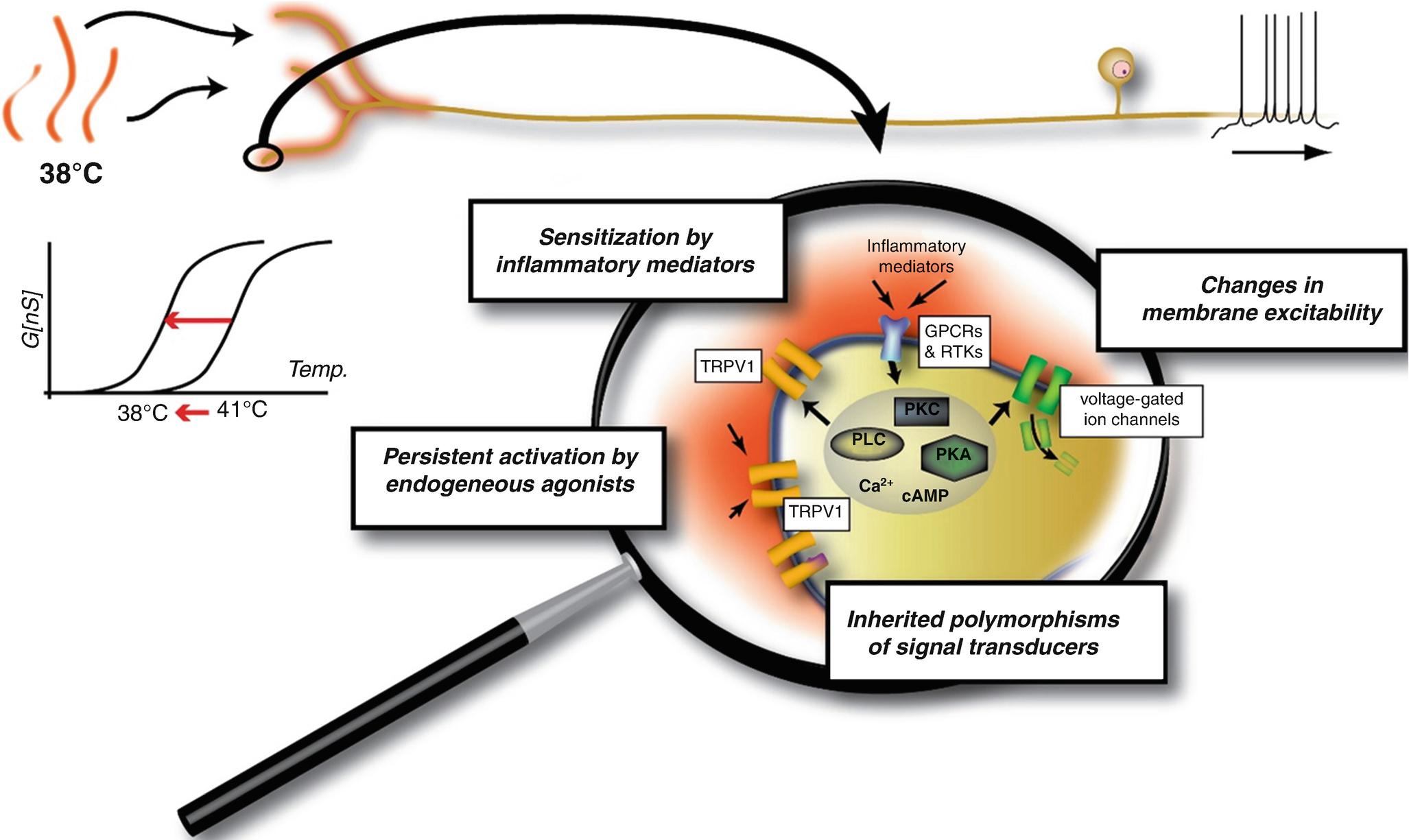 Peripheral Diabetic Neuropathies | SpringerLink