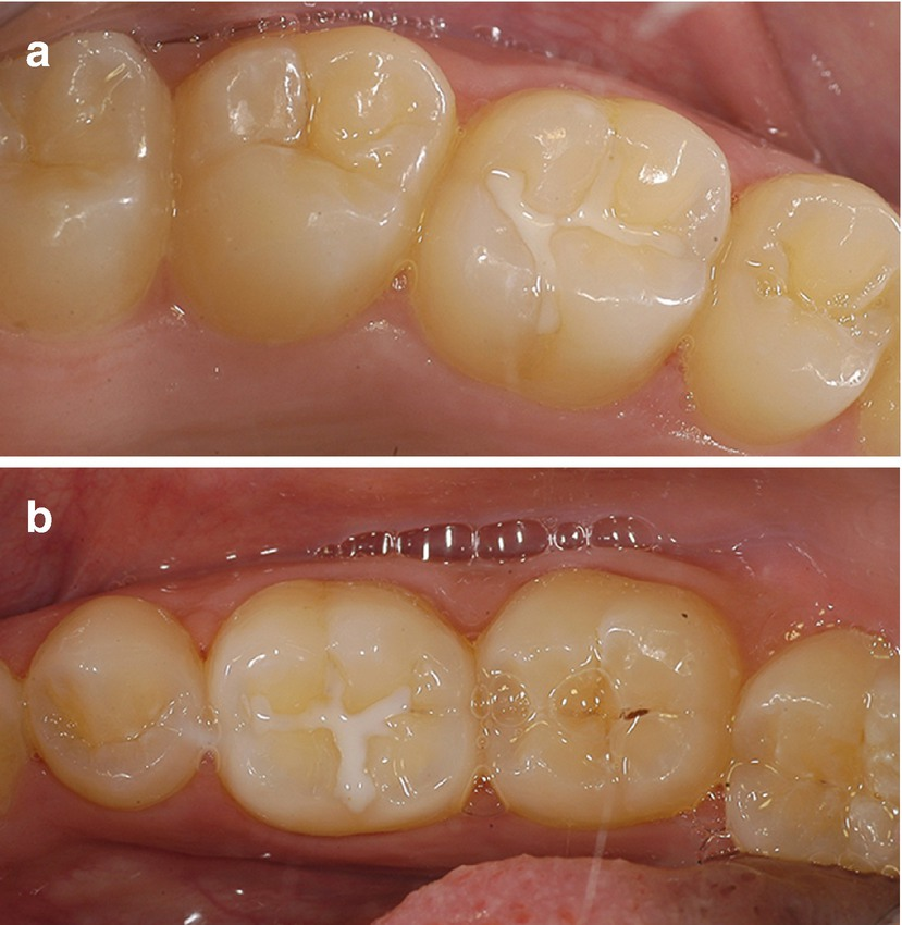 Resin and Glass Ionomer-Based Pit and Fissure Sealants | SpringerLink