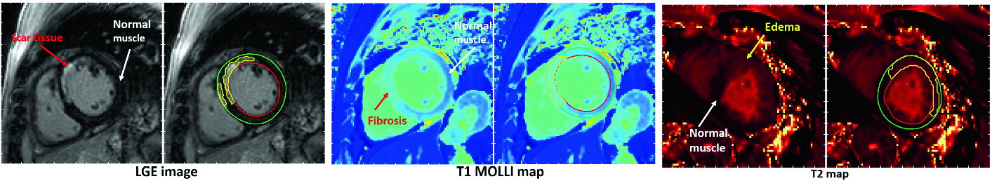 Deep Learning Segmentation of the Left Ventricle in Structural CMR
