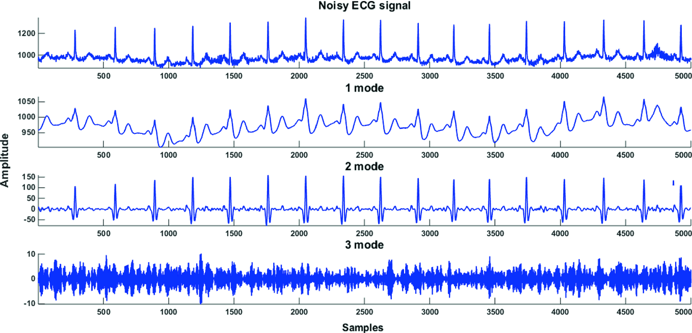 Modern Methods for Signal Analysis and Its Applications