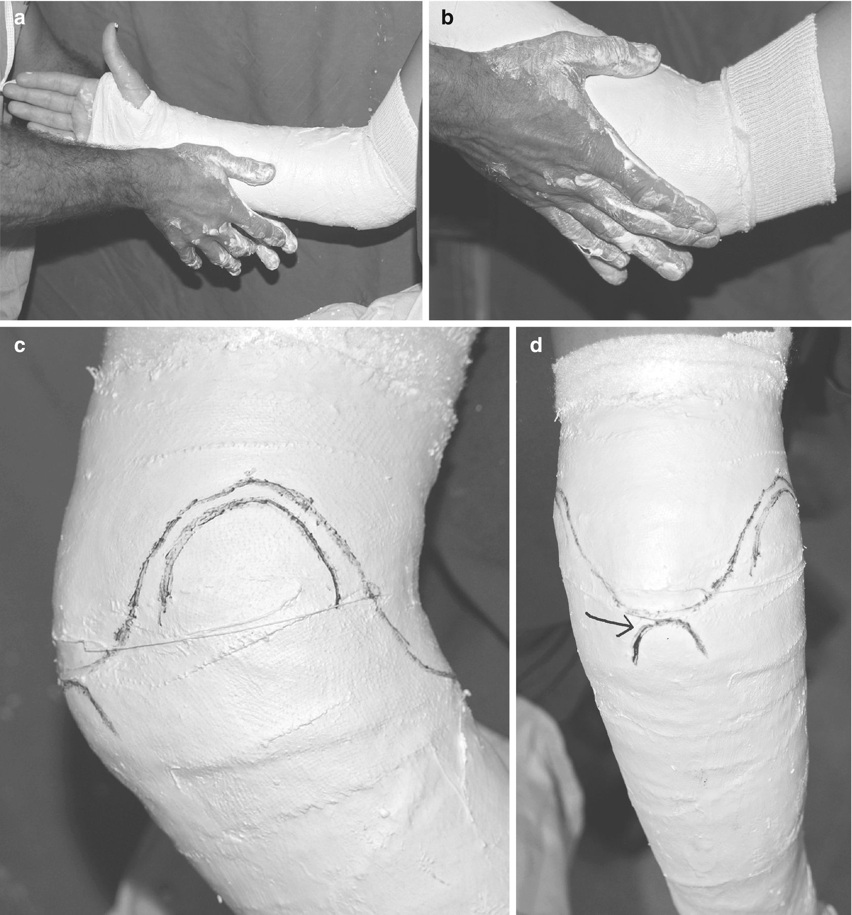 Nonsurgical Principles of Fracture and Injury Management