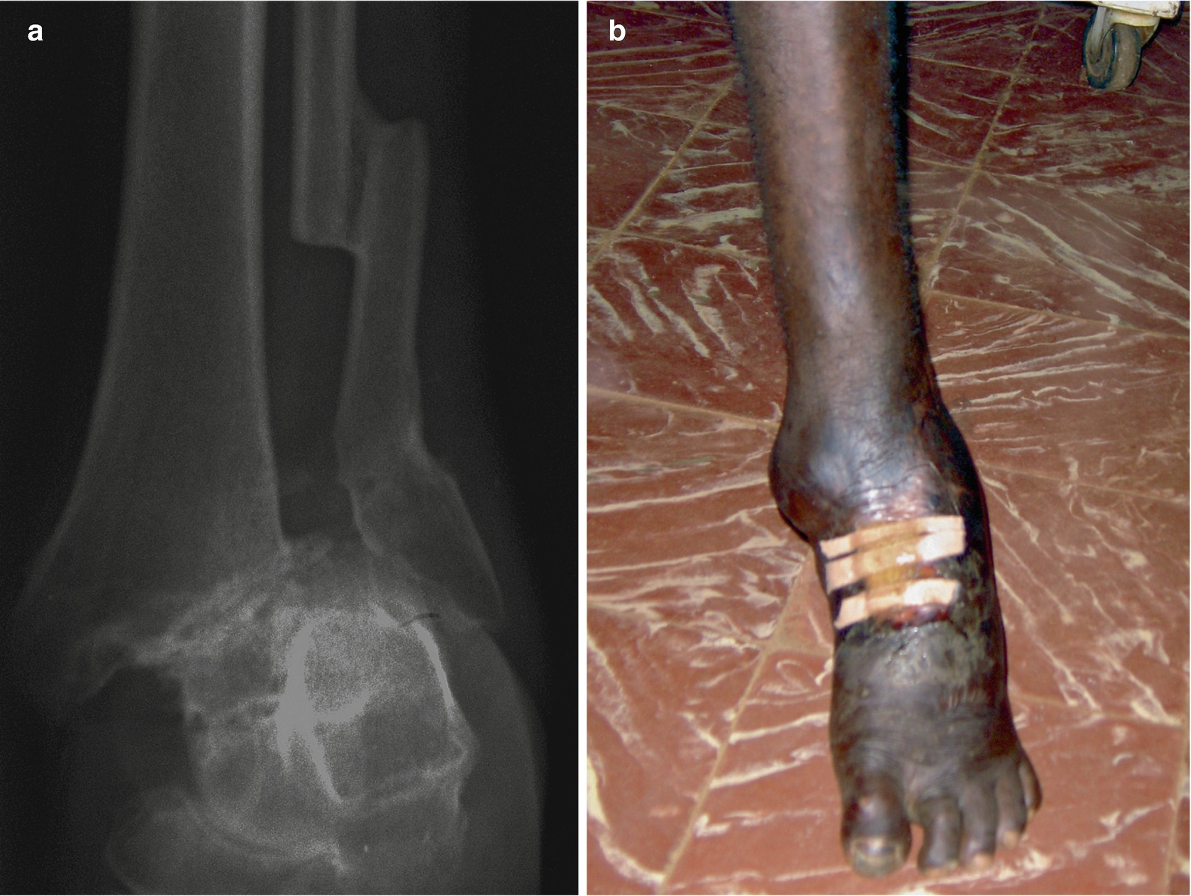 Trauma of the Ankle and Foot   SpringerLink
