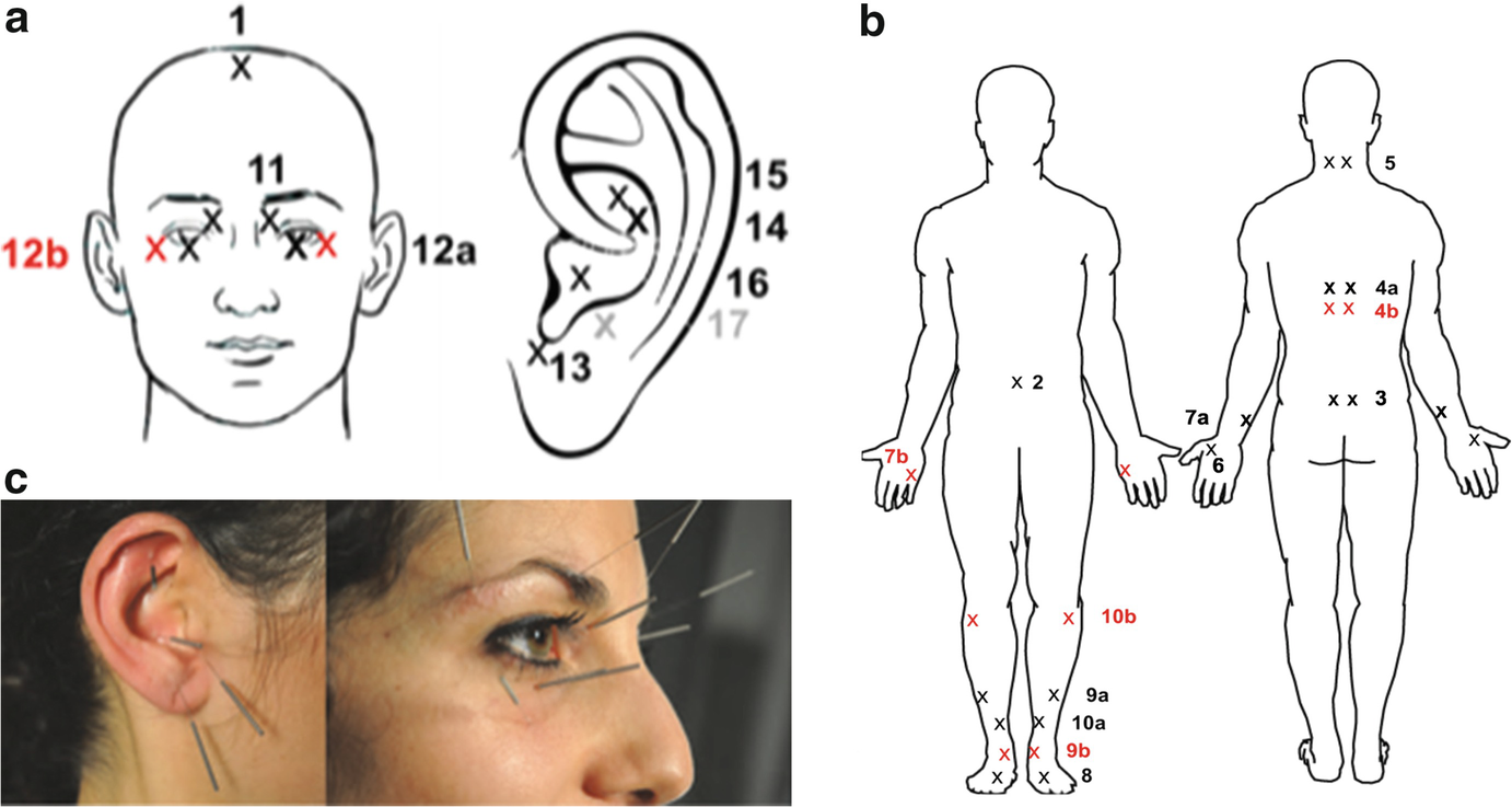 Positive Effects of Acupuncture Benefiting Individuals with Flammer