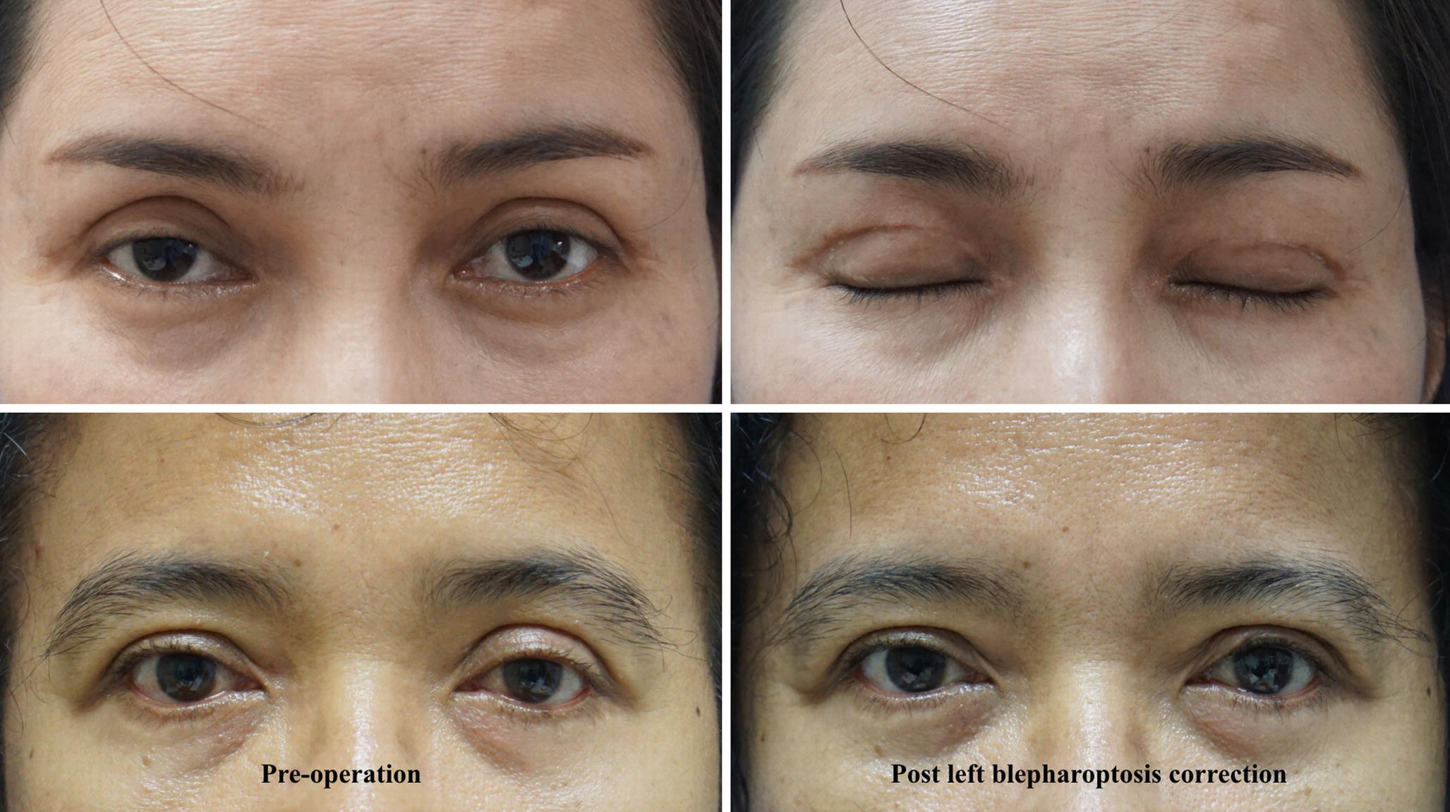 Complications of Asian Upper Blepharoplasty and Their