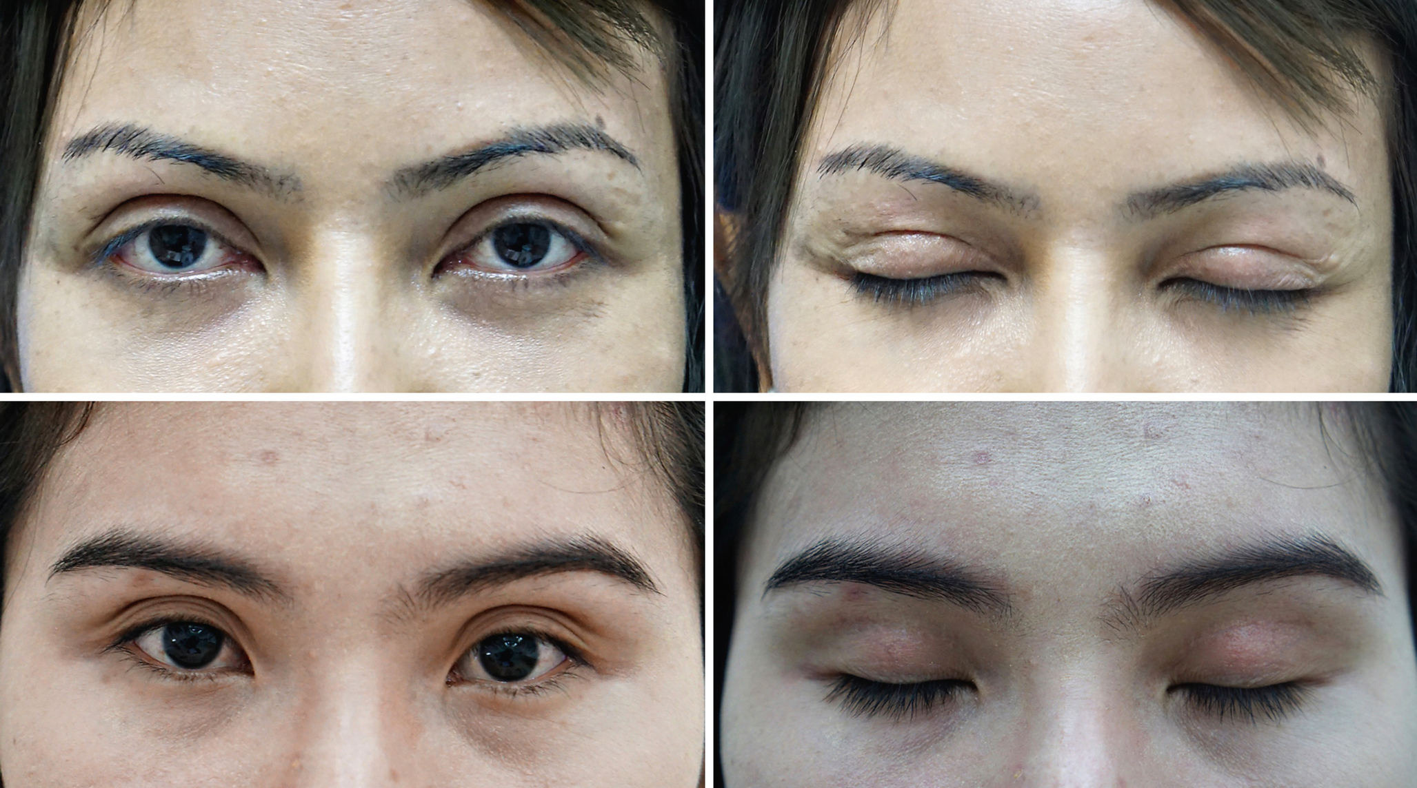 Complications of Asian Upper Blepharoplasty and Their Solutions |  SpringerLink