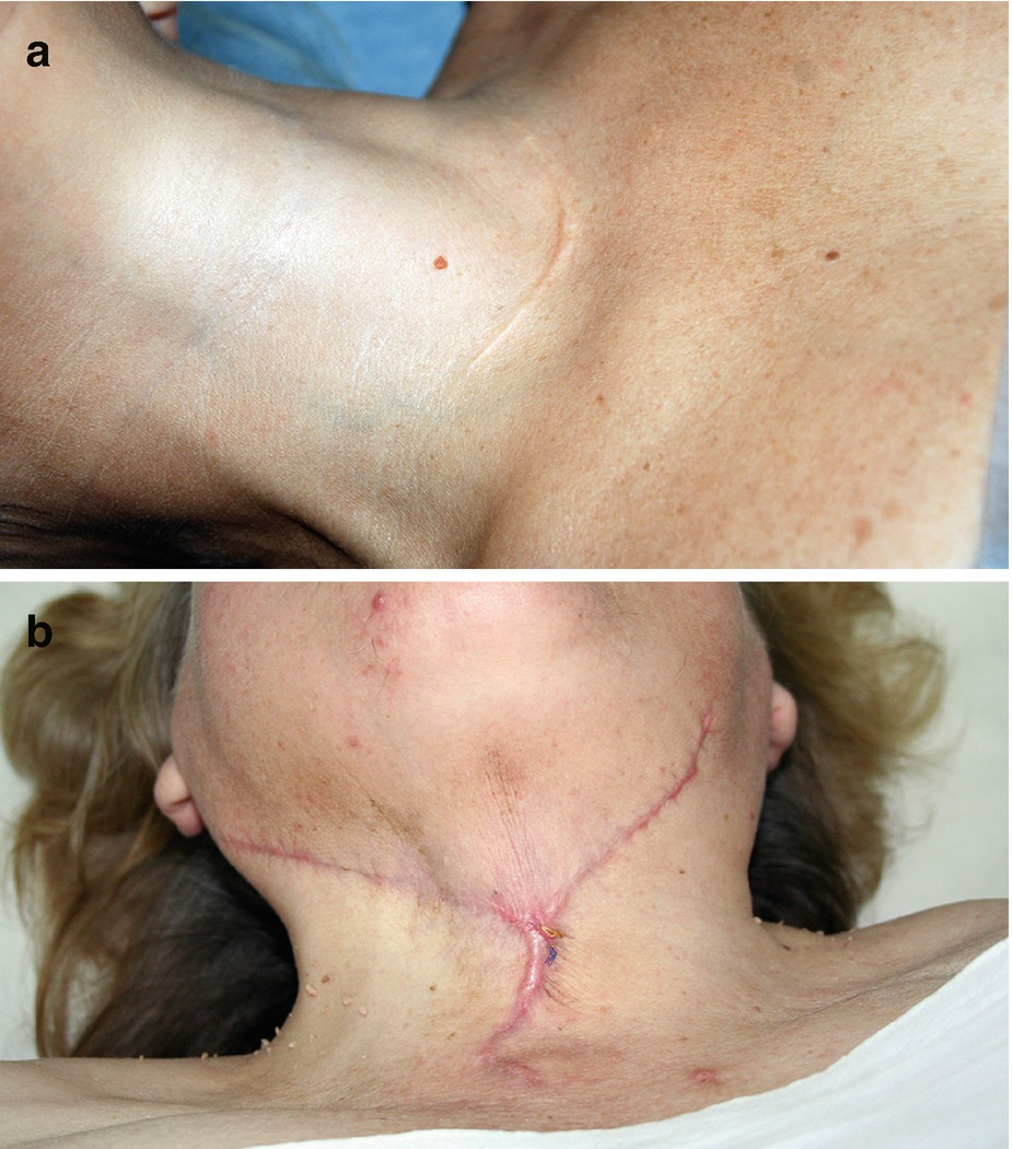 Neck Ultrasound After Thyroid Surgery Springerlink