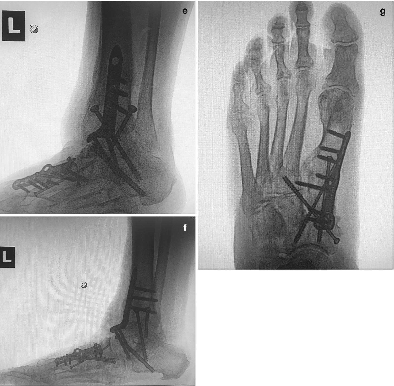 Tibiotalocalcaneal Arthrodesis | SpringerLink