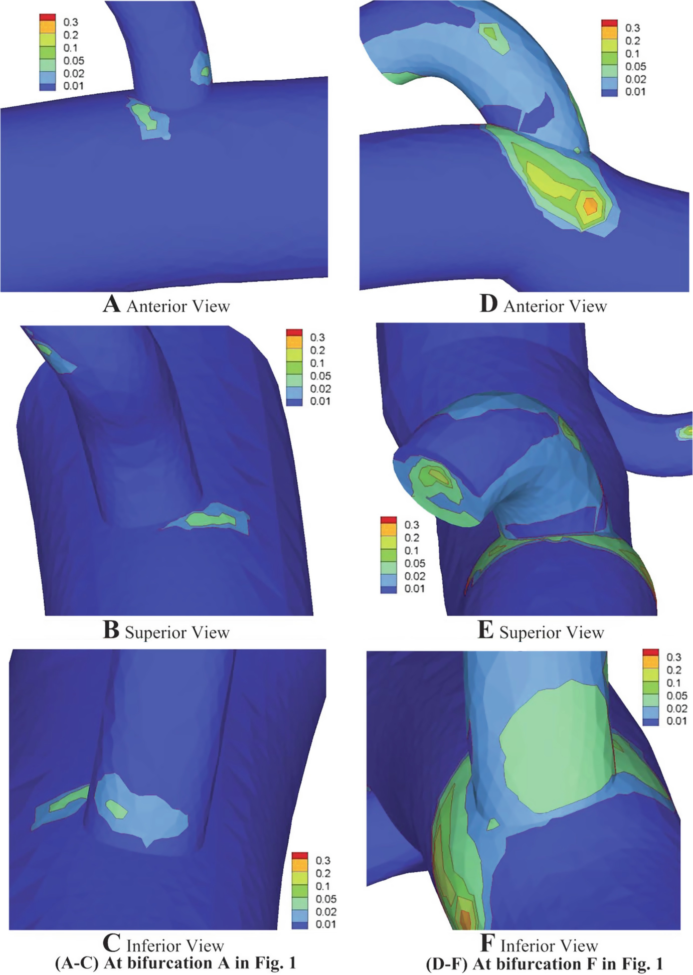 Local Coronary Flow and Stress Distribution | SpringerLink