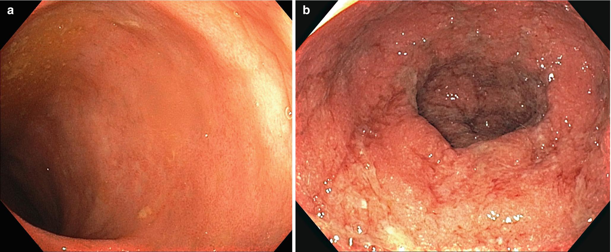 Inflammatory Bowel Disease Springerlink