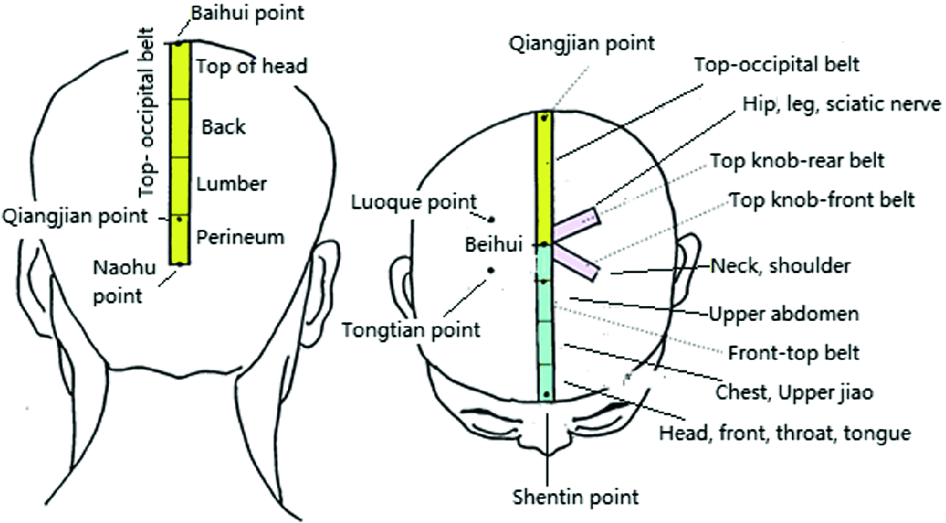 Acupuncture Styles in Current Practice | SpringerLink on acupuncture points map, acupuncture needle placement map, face acupuncture map, foot acupuncture map, acupuncture meridian map, eye acupuncture map, nervous chinese acupuncture map, tongue acupuncture map, auricular acupuncture map, acupuncture brain map, ear acupuncture map,