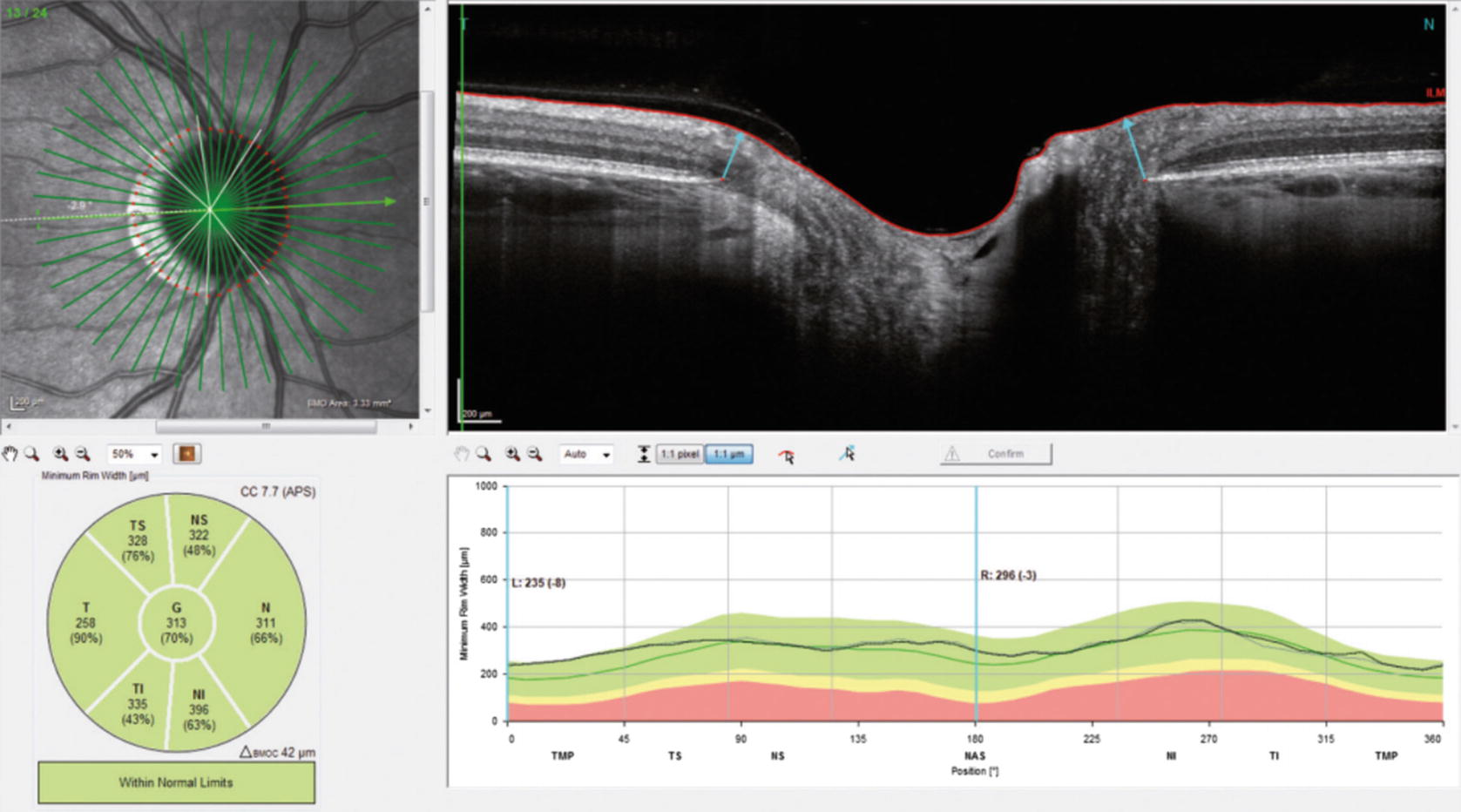 Optical Coherence Tomography (OCT): Principle and Technical ...