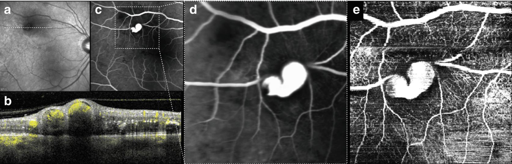 OCT Angiography (OCTA) in Retinal Diagnostics | SpringerLink