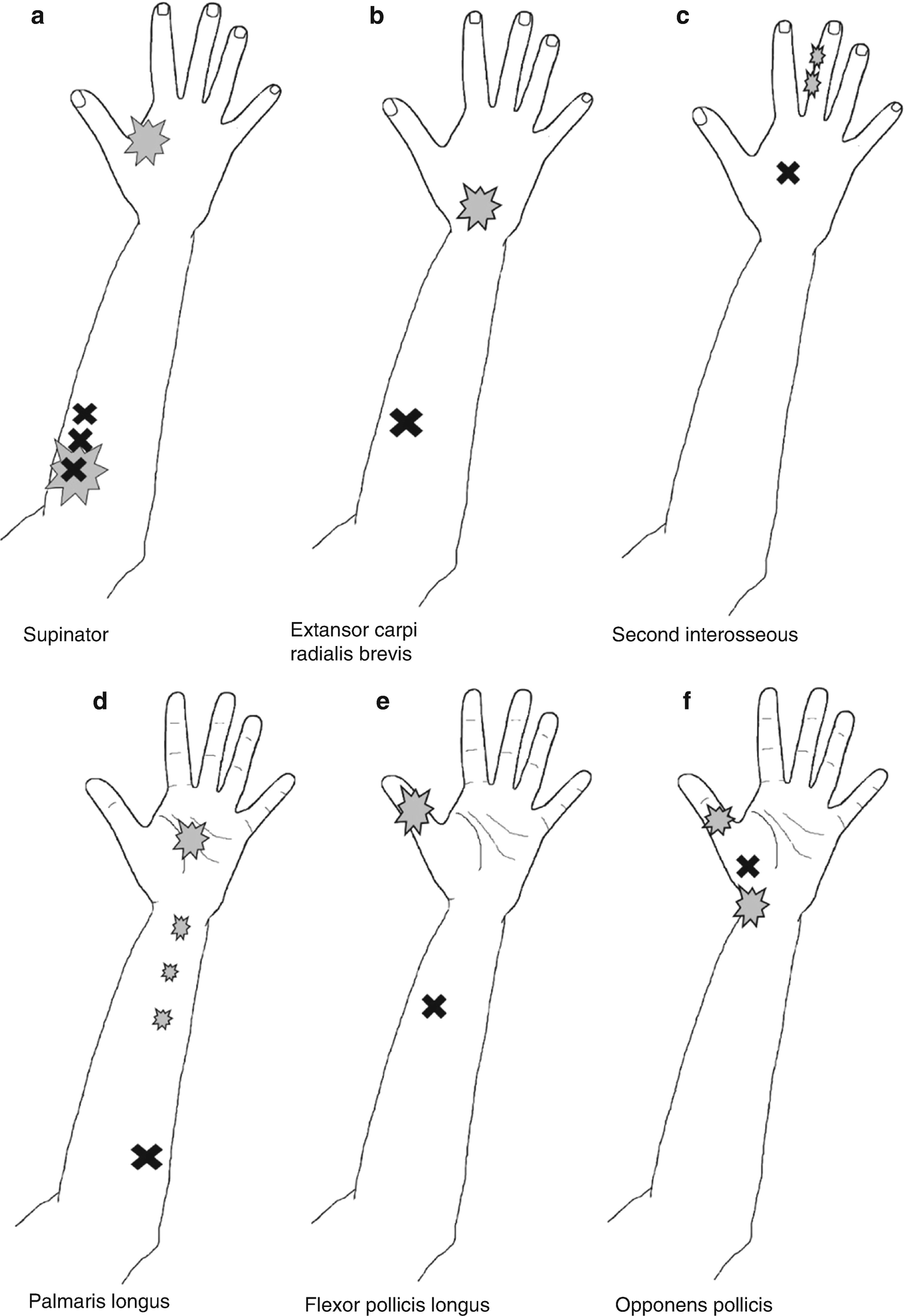 Pain and Hand Function | SpringerLink