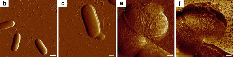 Endotoxin In Microbiological Context Springerlink