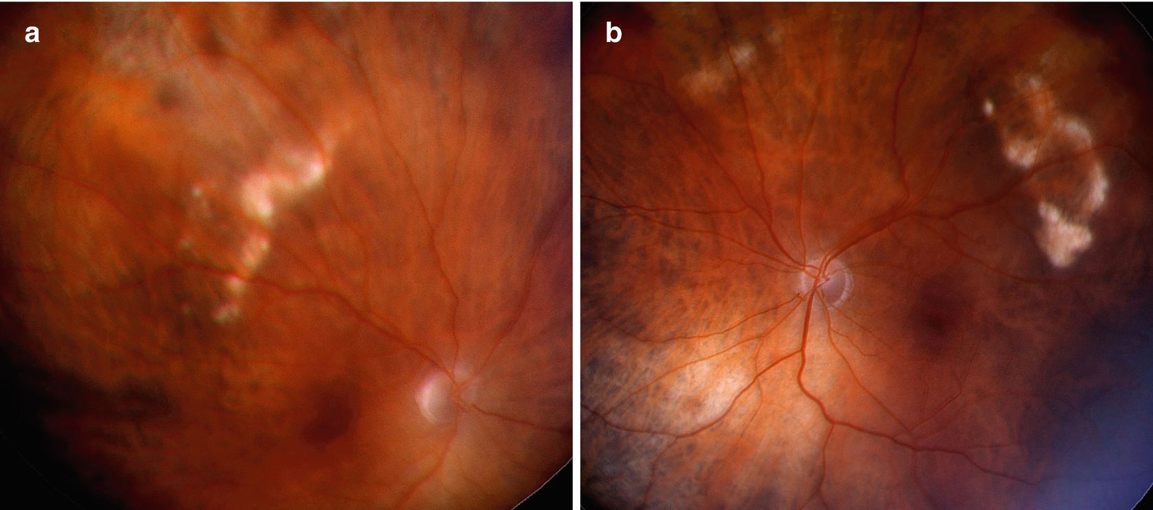 Uveal Melanoma: Differential Diagnosis | SpringerLink