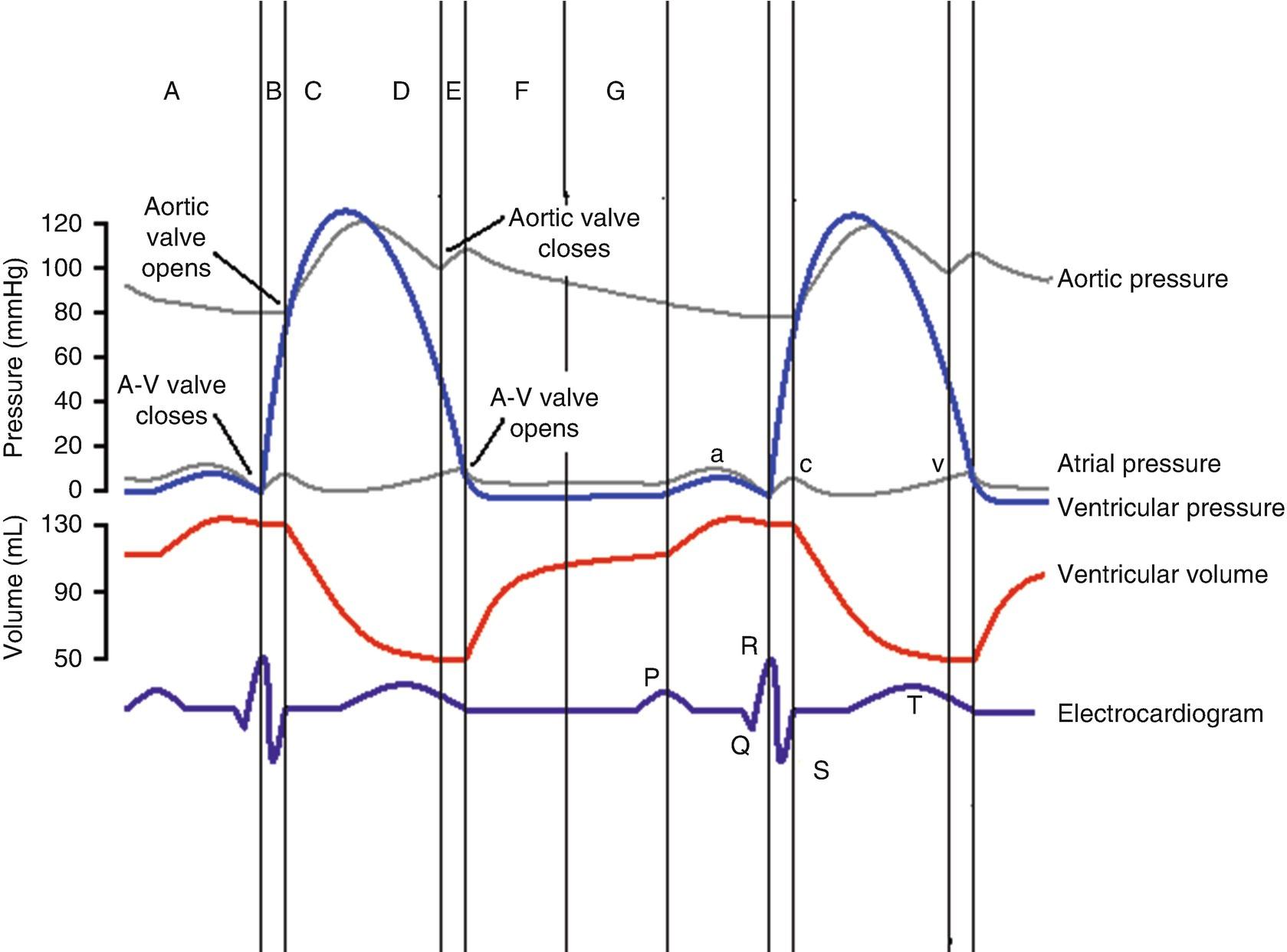 Cardiac Catheterization Right And Left Heart