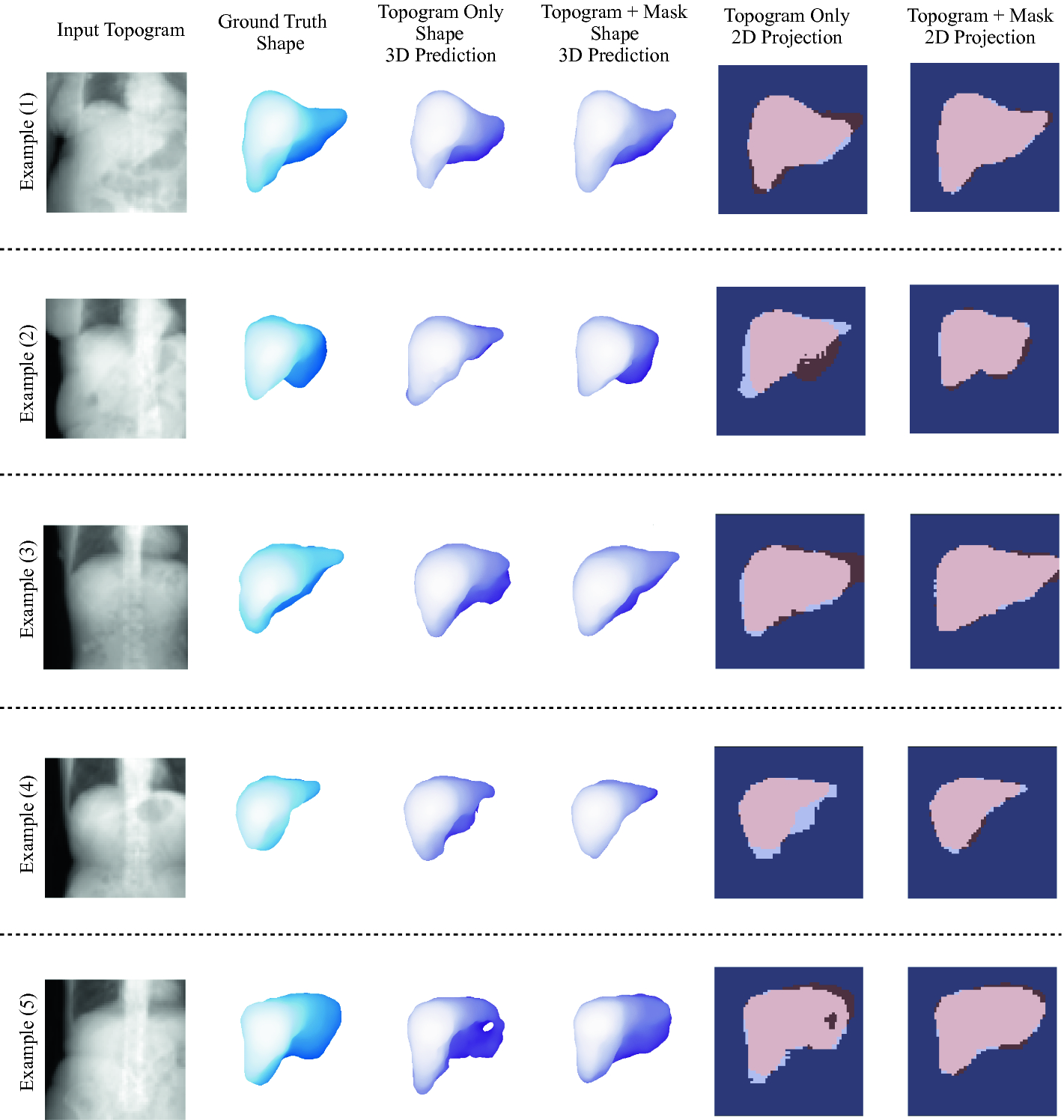 3D Organ Shape Reconstruction from Topogram Images