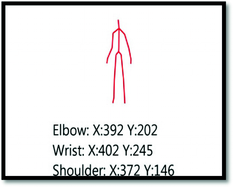 Fall Prevention Exergame Using Occupational Therapy Based on Kinect
