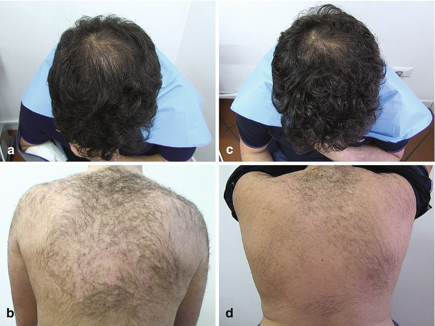 Androgenetic Alopecia Clinical Treatment Springerlink