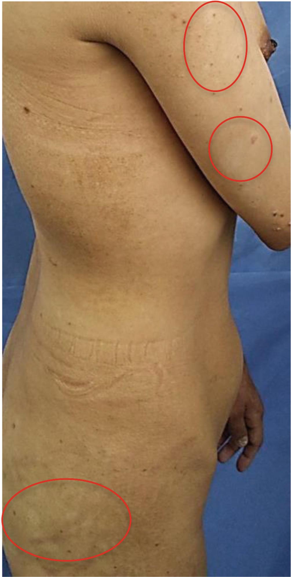 Alopecia Nail Dystrophy Vitiligo And Hypoparathyroidism Springerlink