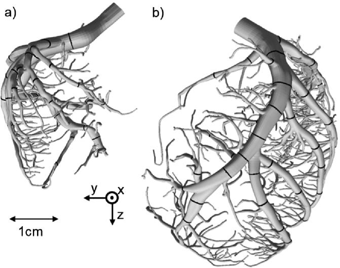 Development of a Computational Fluid Dynamics (CFD)-Model of