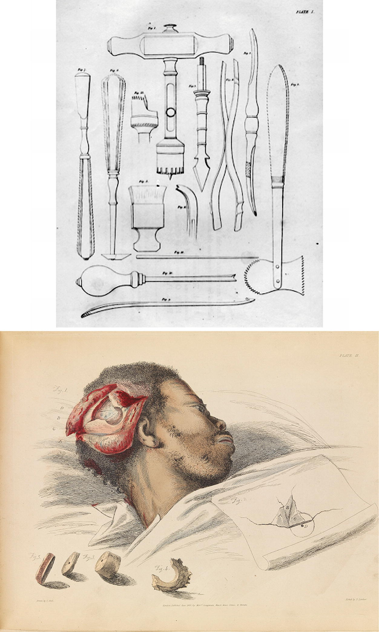 Treatment of war wounds and fractures - with special reference to the closed method as used in the war in Spain
