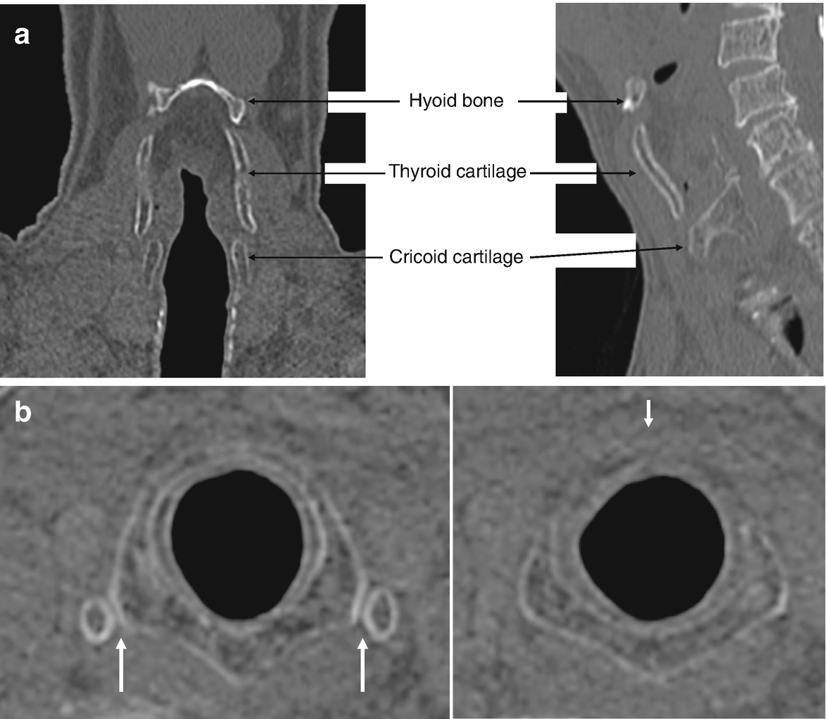 The Cricoid Cartilage Springerlink