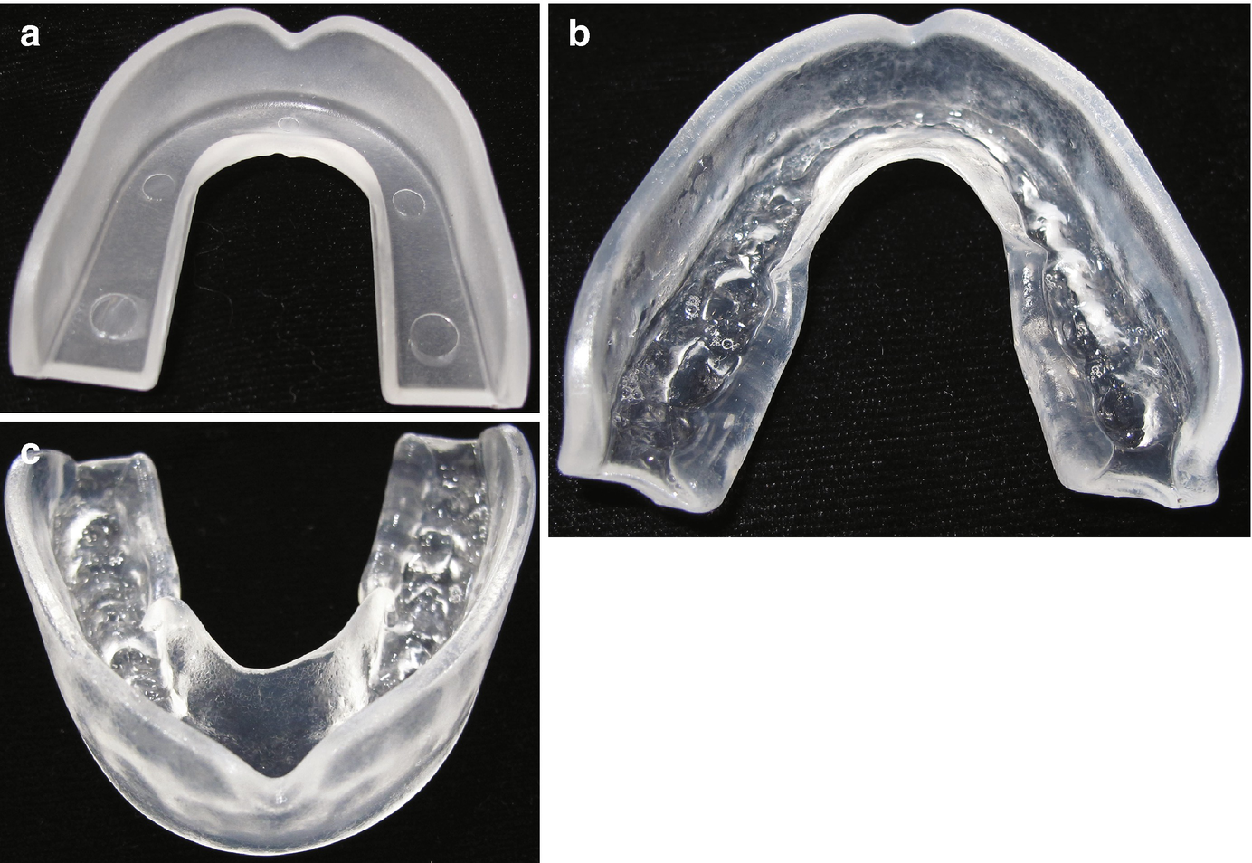 Prevention of Traumatic Dental Injuries | SpringerLink