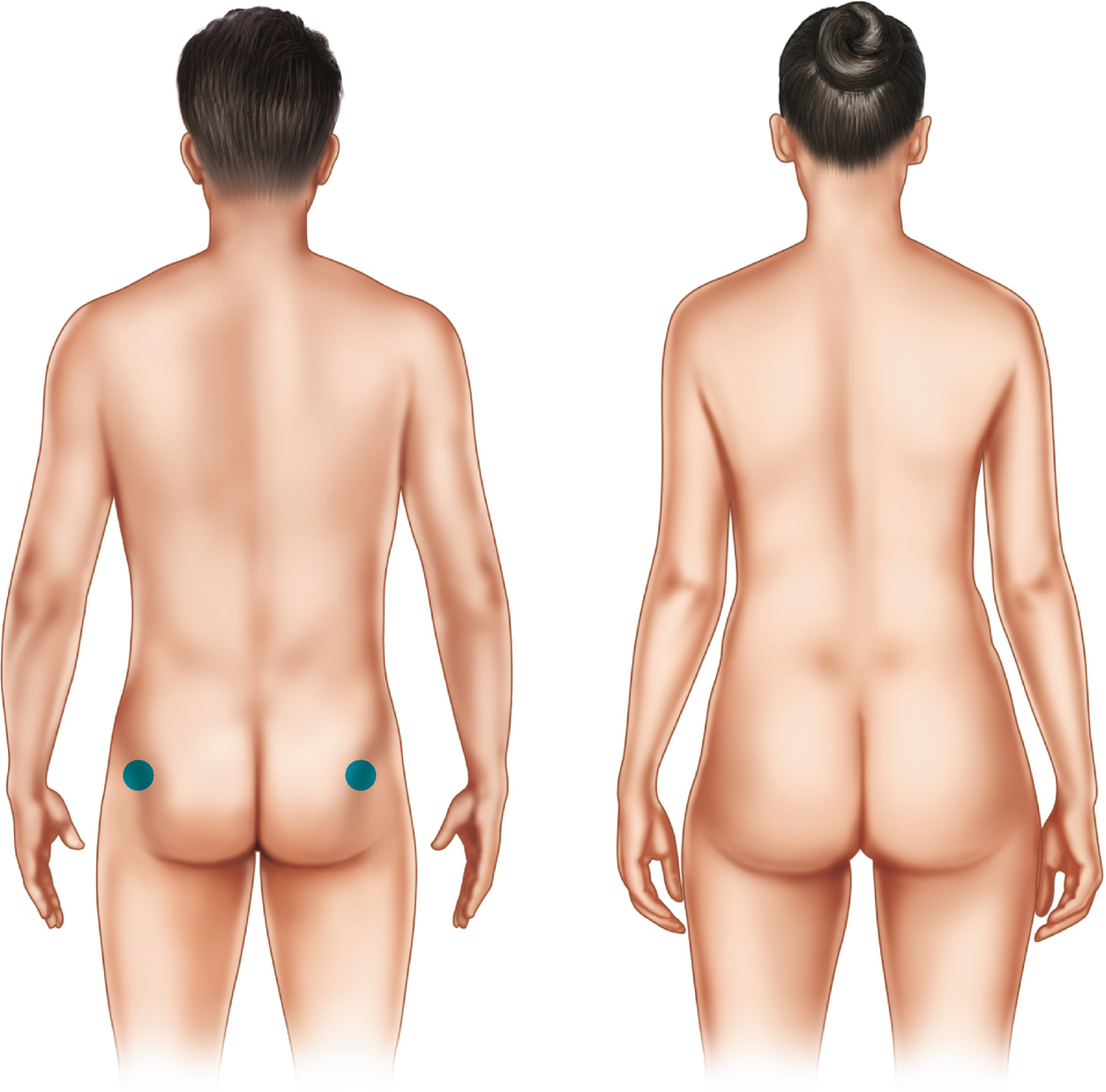 Male-to-Female Breast Augmentation and Body Contouring | SpringerLink