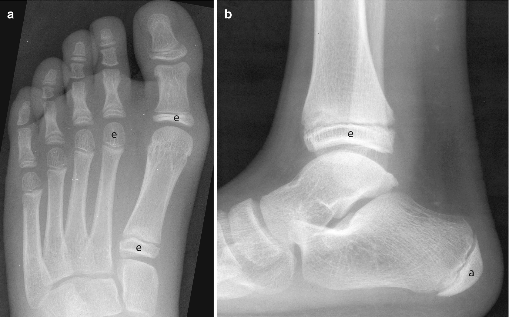 Radiology Of The Pediatric Foot And Ankle Springerlink
