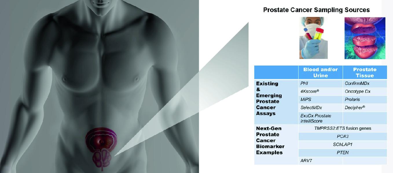 Gyertyák a prosztatitis kezelésére propoliszokkal Diclofenac a prosztatitis kezelésére