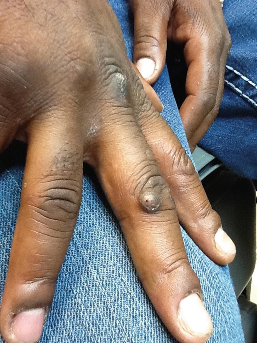 warts on dark skin