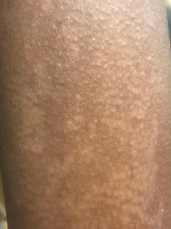 Warts on dark skin Verruca Vulgaris - Hpv black warts