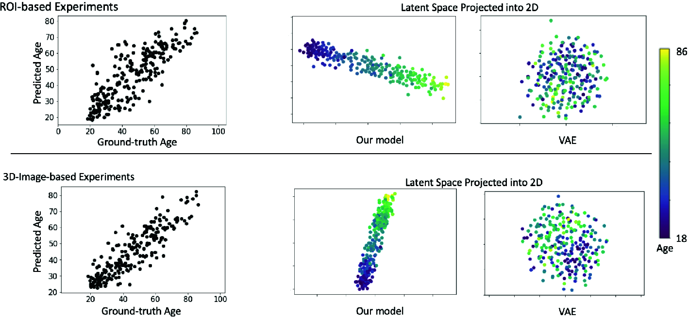 Variational AutoEncoder for Regression: Application to Brain