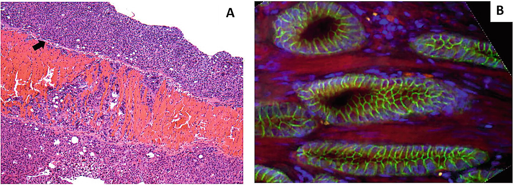 Prostate fibrosis Mi az
