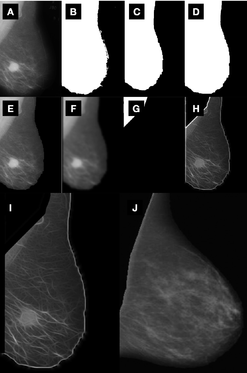 Automated Identification Of Breast Cancer Using Digitized