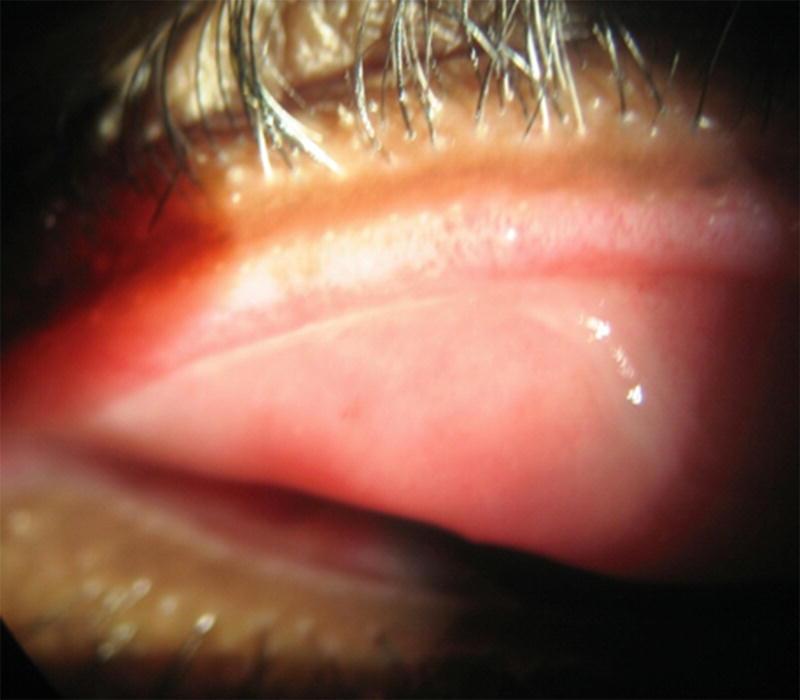 condilom pvi papilloma vírus 4