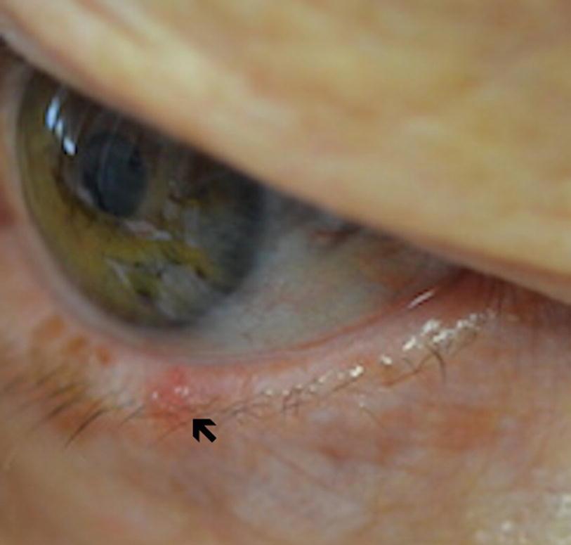 Hyperkeratotic papillomatous lesion - Hepatic cancer pathology