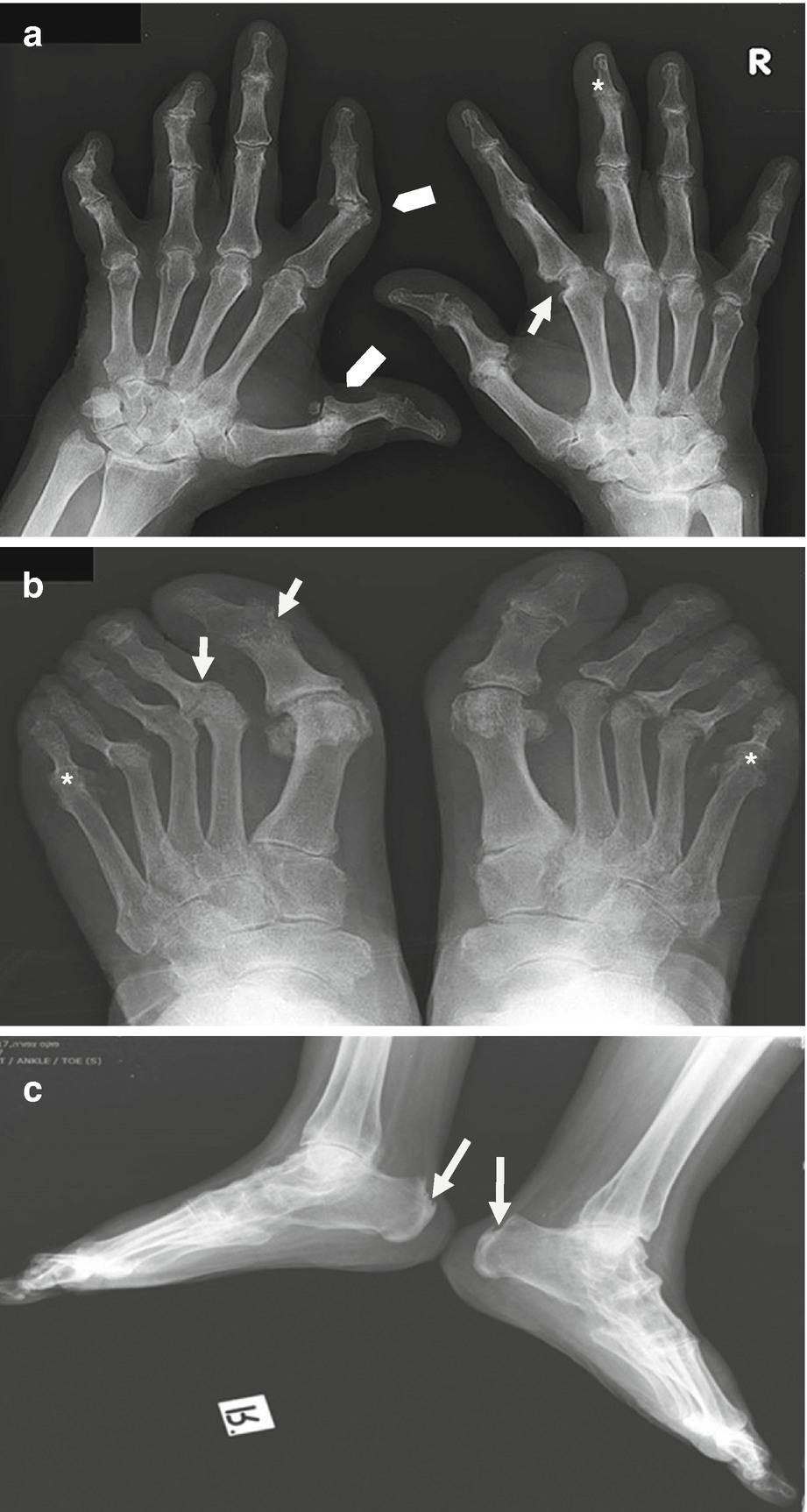 este posibilă vindecarea artrozei articulației genunchiului