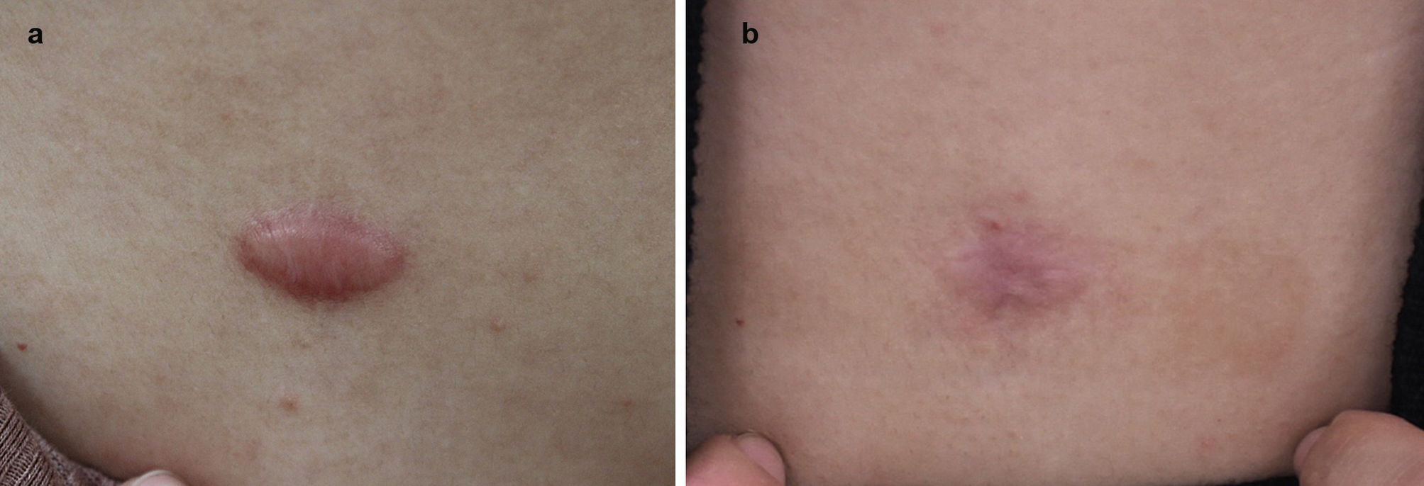 steroid injection scars
