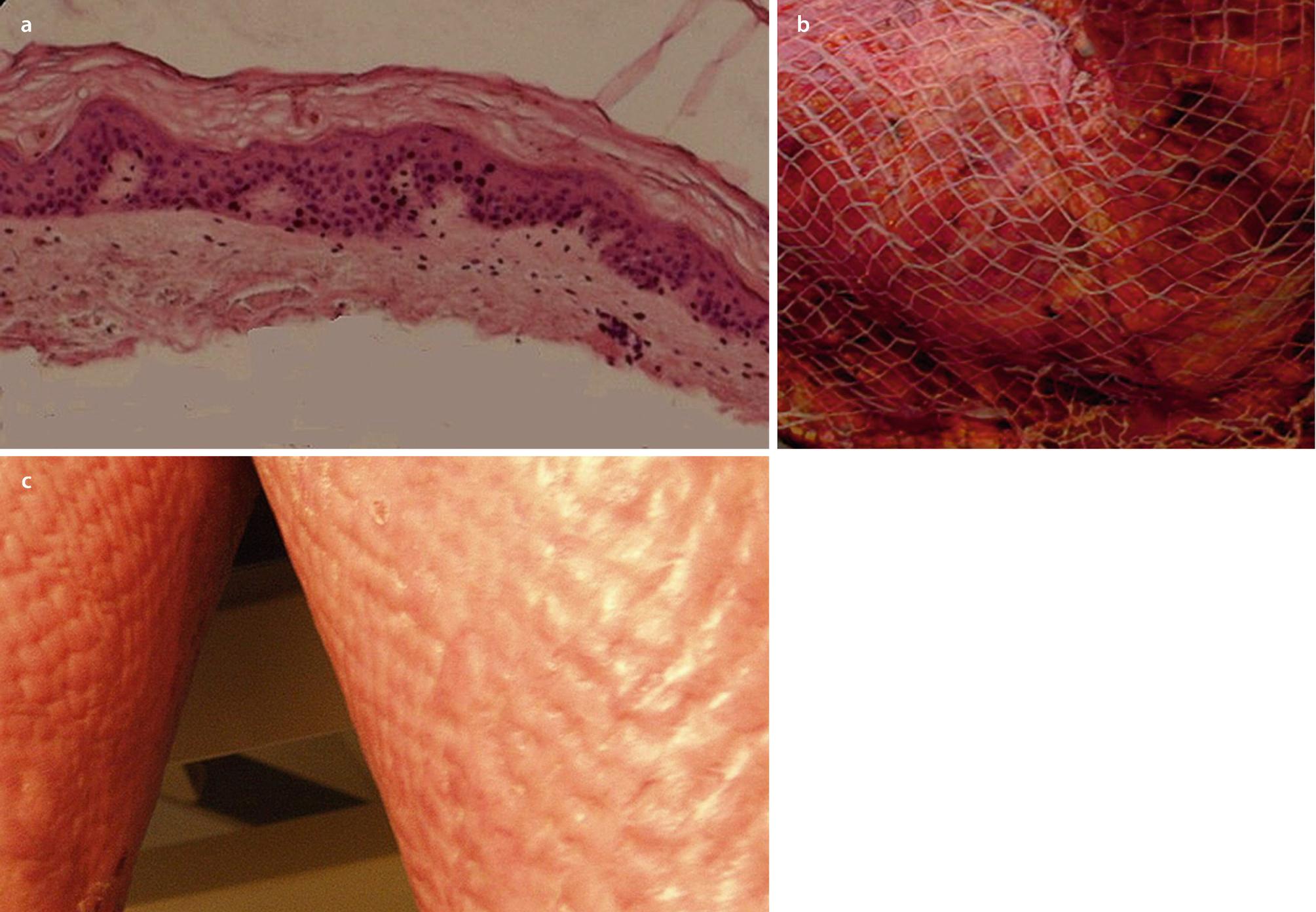 Invasive Techniques In Scar Management Skin Substitutes Springerlink