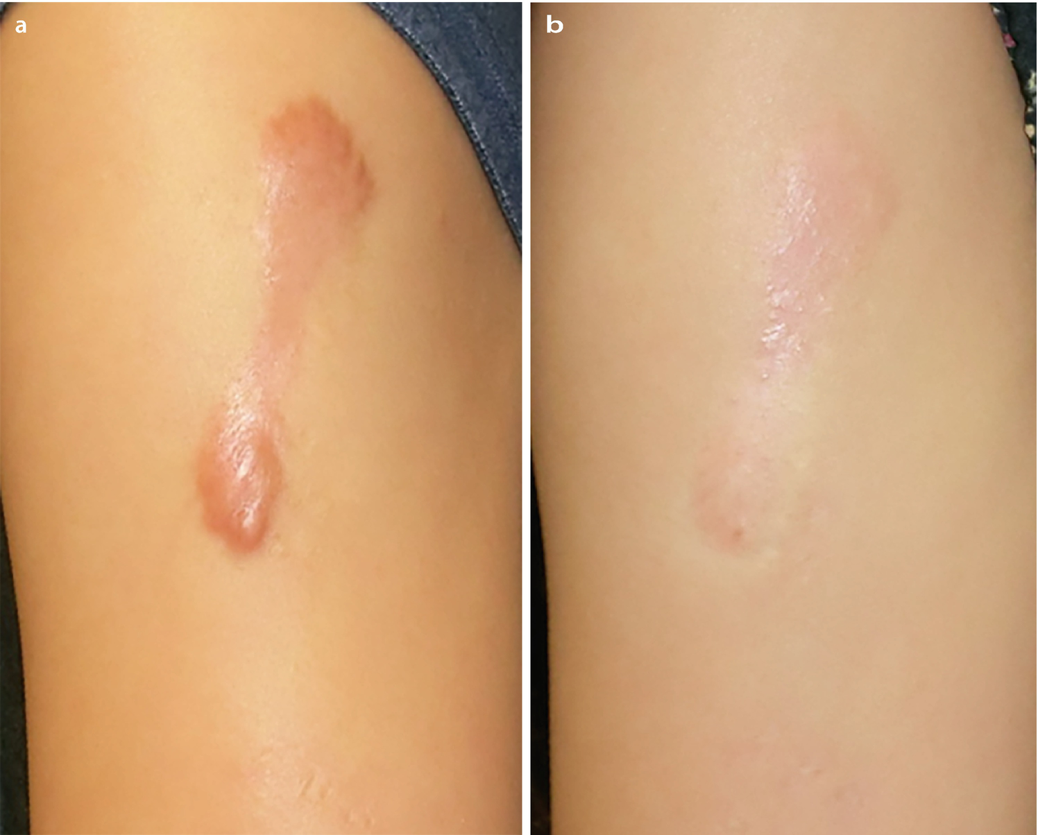 Keloid before and after steroid injection dbol oral steroids side effects