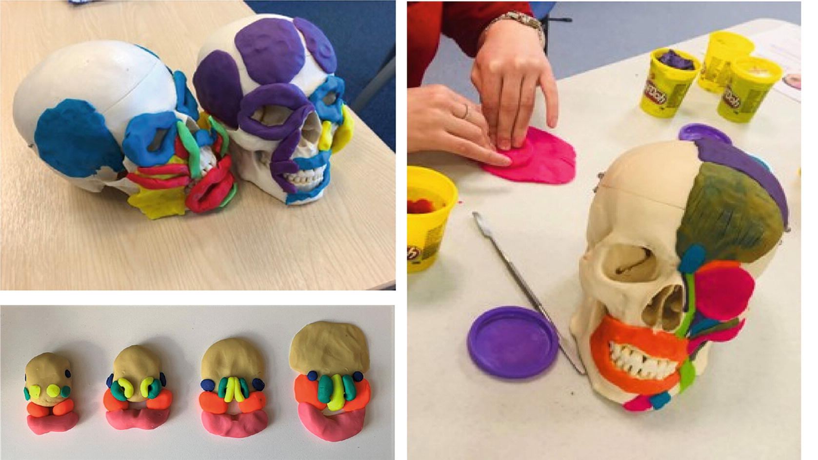 Body Painting Plus Art Based Activities To Improve Visualisation In Clinical Education Settings Springerlink