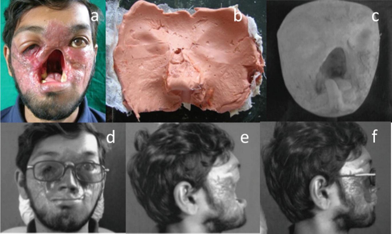 stoc de varicioză foto după operație