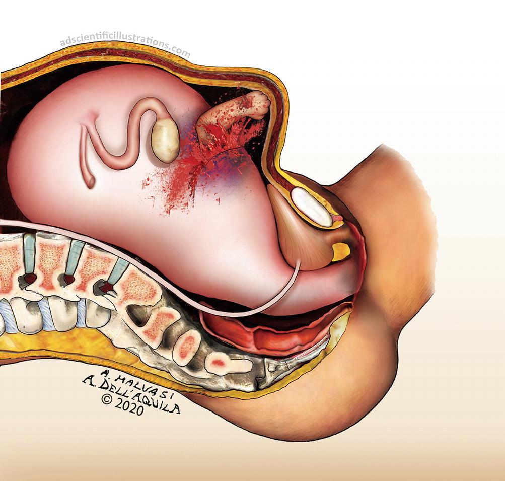 Naștere cu varice perineale