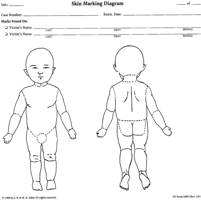 Bite marks and tooth marks springerlink drawing chart of the skin body child ccuart Choice Image