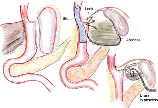 Case on Complication of Sleeve Gastrectomy | SpringerLink