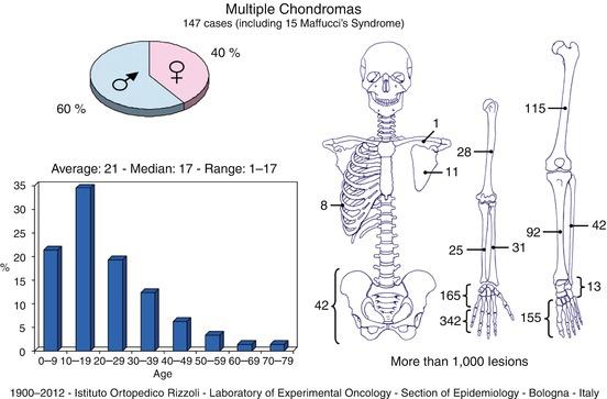 Multiple Chondromas (Chondromatosis, Ollier's Disease