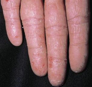 Dermatitis | SpringerLink